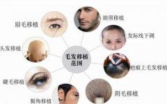 瑞士NAT美学植发技术,专为艺术种植而生