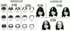 头发稀疏是由什么原因导致的